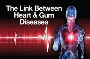 heart-gum-diseases-link-350